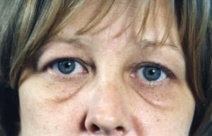 Blepharoplasty (Eyelift)